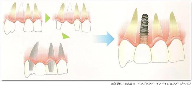 implant_13