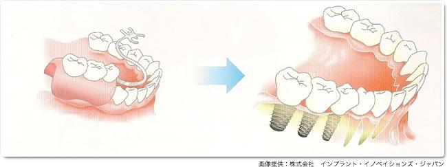 implant_15