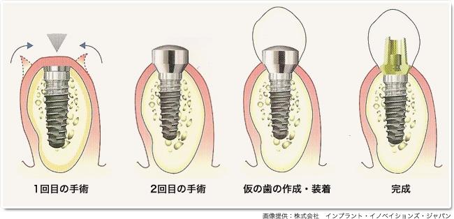 implant_19