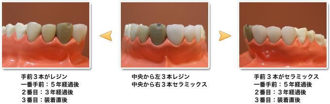 レジン(保険)とセラミックス歯(保険外)の経年変化の比較