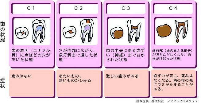 虫歯の進行過程図