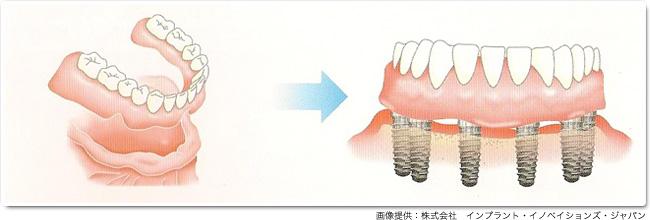 implant_17
